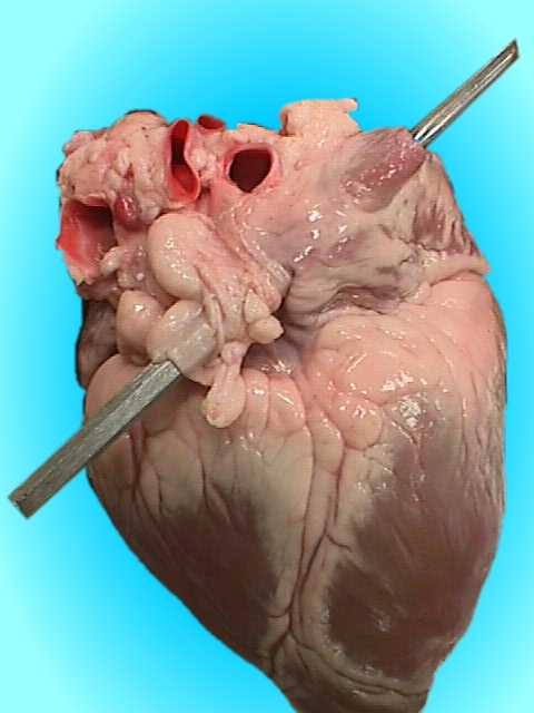 When You Know You Shouldn\'t Be a Heart Surgeon - A Spoonful of TLC